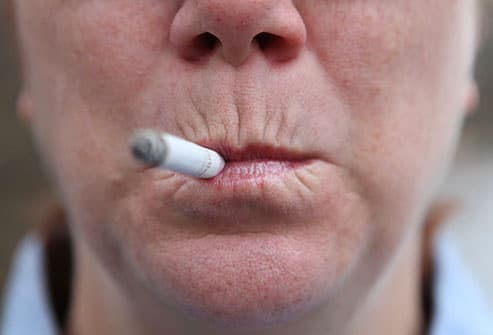Woman With Smokers Lips