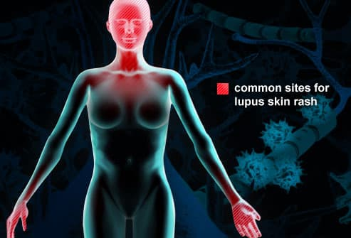 Illustration O f Lupus Rash Sites