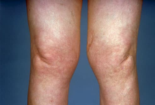 swollen knees of a patient with osteoarthritis