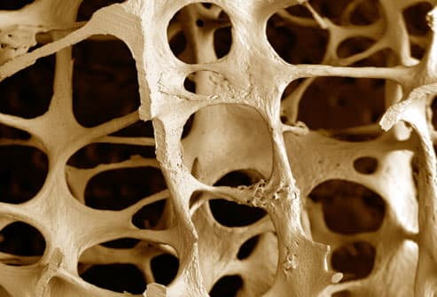 Scanning electron micrograph (SEM) of osteoporosis