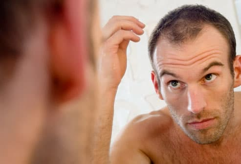 Man checking receding hairline in mirror