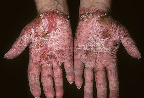 psoriasis cure in homeopathy
