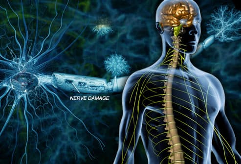 Multiple Sclerosis : MS Brain Lesions, Symptoms, Causes, Types, and Treatments