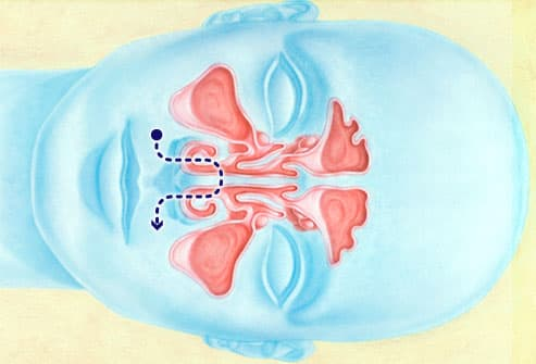 Illustration of nasal irrigation