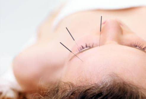 acupuncture for migraines providence ri
