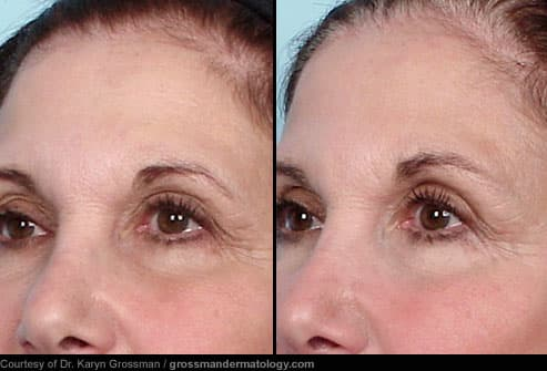 Thermage: Before and After