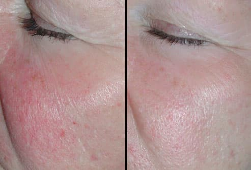 Patient Pre and Post IPL Treatment