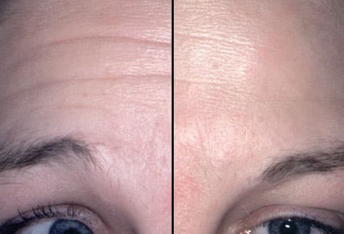 Botox Doncaster, Mens, Womens Prices and Free Consultations at Twiggys, Regent Square, Doncaster