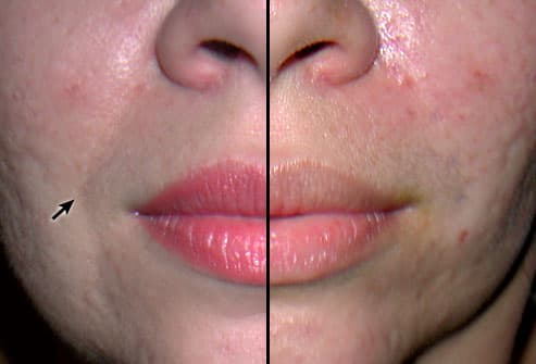 Patient Before and After Cosmetic Filling 