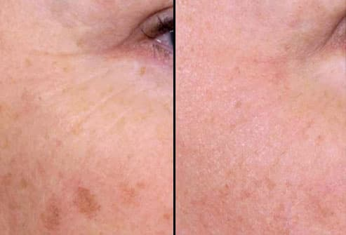 Before and After Nonblative Laser Treatment