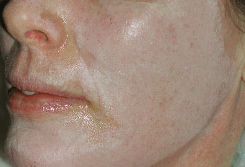 Woman Receiving Chemical Peel Treatment