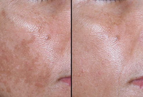 Melasma Treated with Nonblative Laser 
