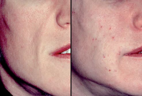 Before and After Human Tissue Treatment