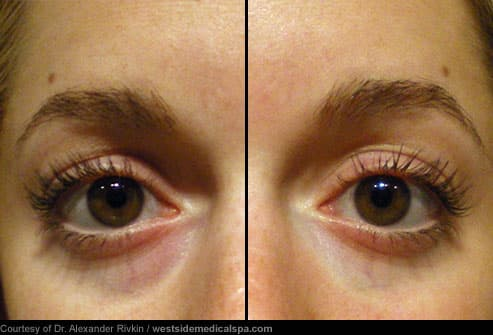 Before and After Eye Bag Filler Treatment