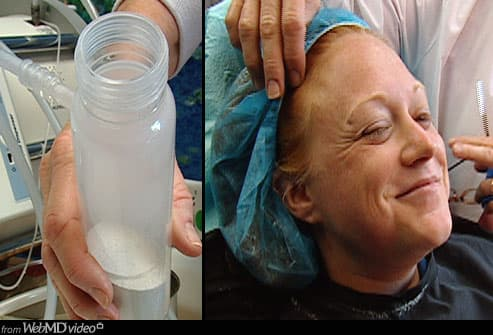 Woman Smiling after Microdermabrasion