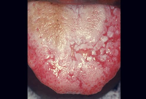 Dry mouth syndrome Oral cancer Oral cancer treatment Oral herpes Oral thrush 2