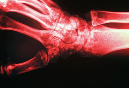 Xray Showing Low Bone Density