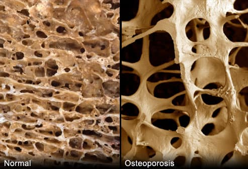 A Visual Guide to Osteoporosis