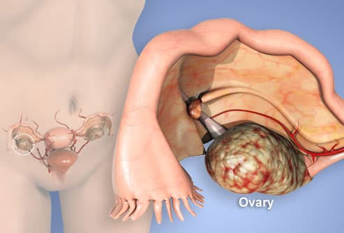 Nanotech system, cellular heating may improve treatment of ovaRian cancer