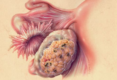 Close Up Illustration Of Ovarian Cancer