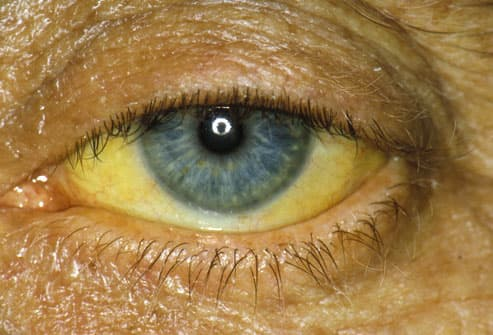 Yellow eye due to obstructive jaundice