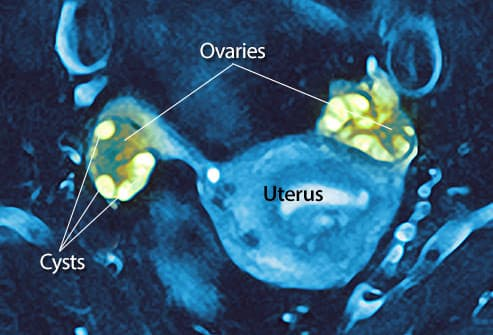 right ovarian cyst