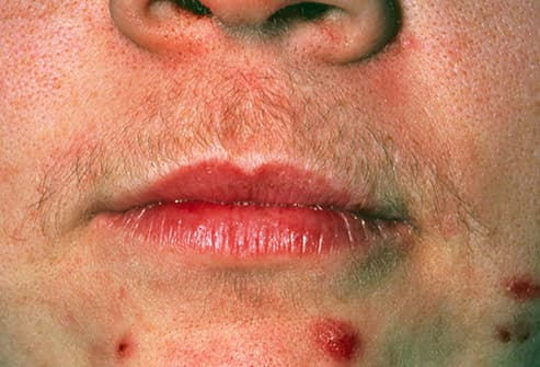skin thinning due to steroid cream
