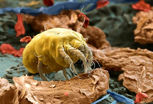 If you're sneezing, it may not be the dog. Dust mites -- a major allergen