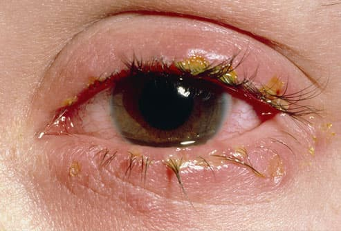 crusts on swollen eyelid from viral infection