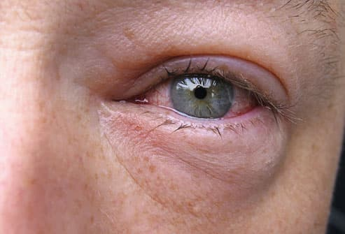 pinkeye conjunctivitis in pictures types treatments