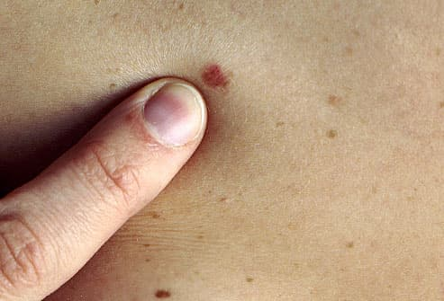 Dermatologist checking mole for melanoma