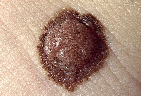 Pigmented and raised atypical mole