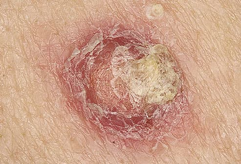 Close-up of squamous cell carcinoma