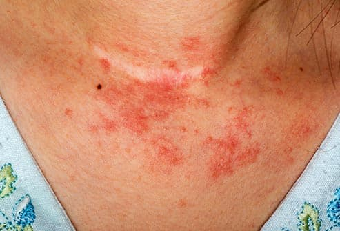 eczema on woman neck