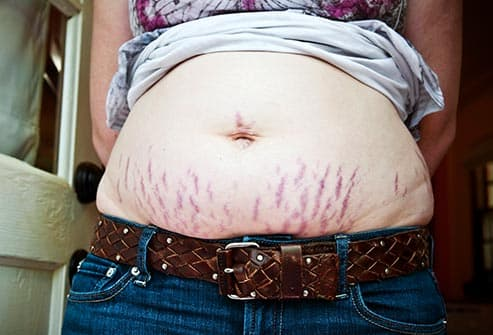 woman with stretch marks