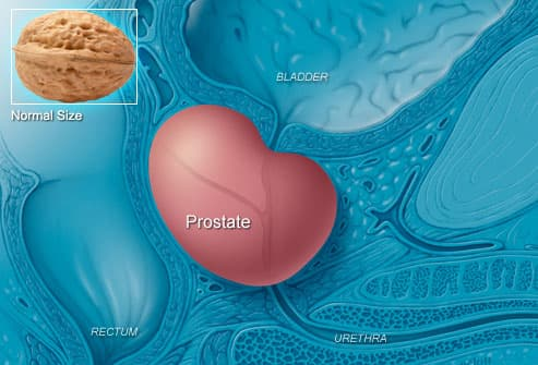 Prostate infection and sperm count