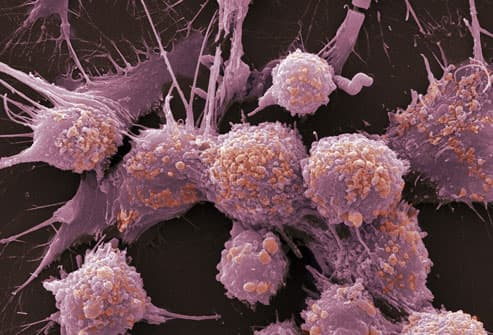 SEM Image Of Prostate Cancer Cells