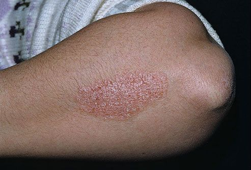 Chronic Plaque Psoriasis on Forearm