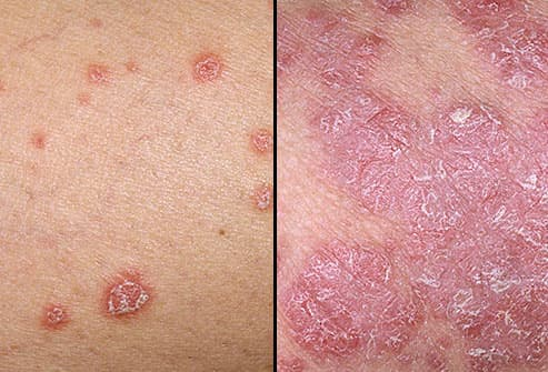 Psoriasis can hit you at any time in your life and can be mild, moderate or severe 2