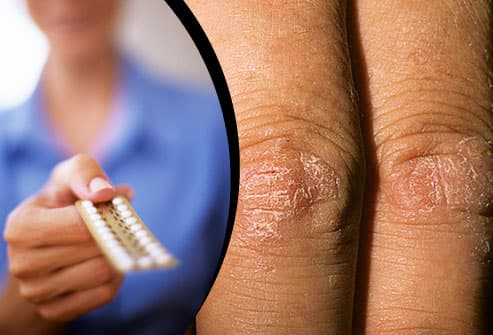 Birth control pills/Psoriasis on knuckles