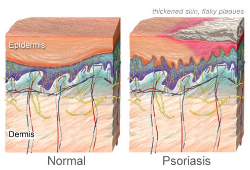 pictures of plaque psoriasis, pustular psoriasis, and other types, Skeleton
