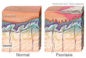 the 7 types of psoriasis, Skeleton