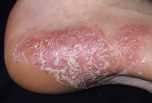 So, when you have psoriasis, your skin cells build up on the surface, creating hard plaques and flaky areas 2