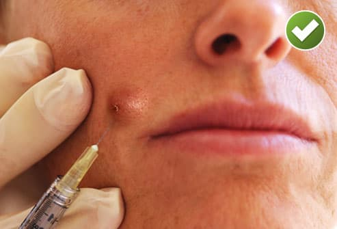 Close up of corticosteroid injection
