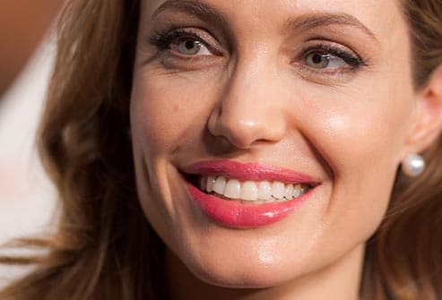 slideshow: recognize this celebrity smile