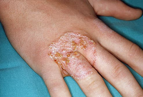 Ringworm on hand
