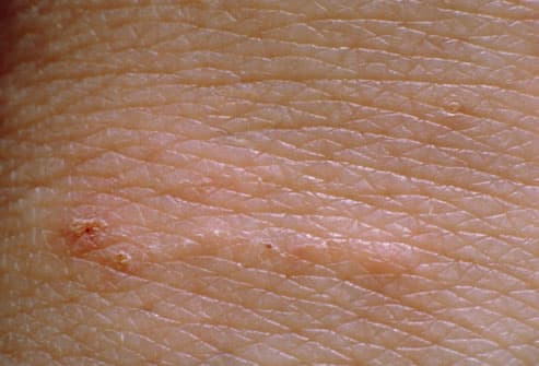 Early Stages of Scabies Photos http://www.webmd.com/skin-problems-and-treatments/ss/slideshow-scabies-overview