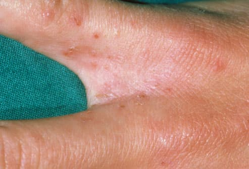 Scabies Infestation Between Fingers