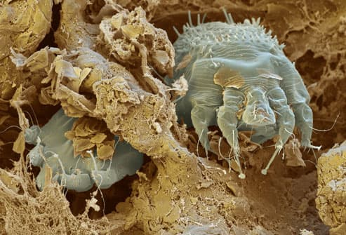 SEM Image of Scabies Mites in Skin