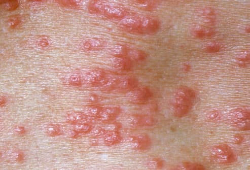 Scabies Infection On Skin